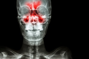 The Relationship Between Your Sinuses and Your Teeth - Allergy & ENT
