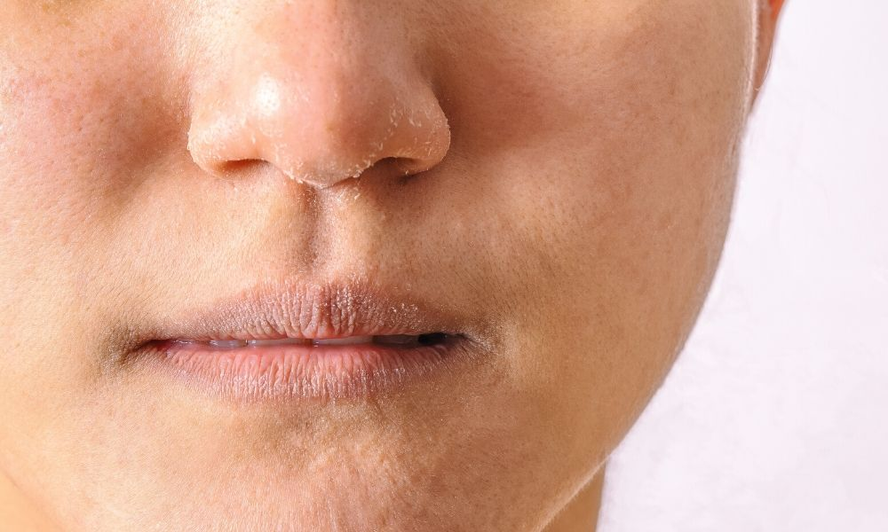 Effective Ways to Treat a Dry Nose
