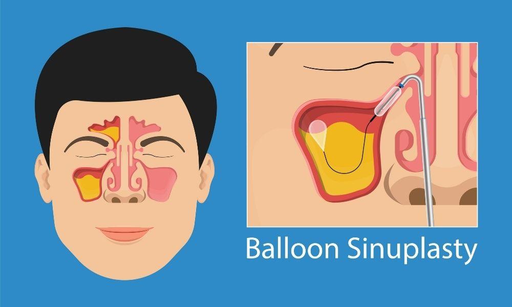 The Benefits of Balloon Sinuplasty Surgery